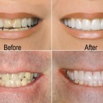 Lumineers dentales