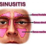 Qué es, porque se da y tratamiento de la sinusitis