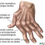 El Cuidado de los Huesos y Articulaciones