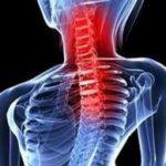 ¿Qué es la artrosis cervical?