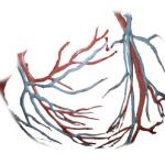 Como se manifiesta la arteriosclerosis